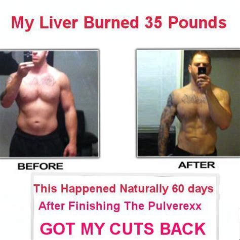 Liver Detox Before And After by Ultra Powerful Liver Detox Gallbladder Cleanse Support
