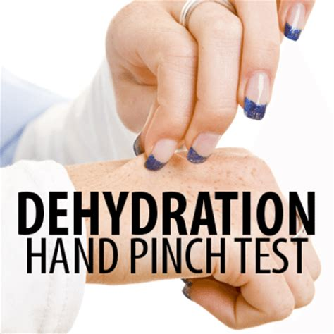 hydration quiz questions dr oz dehydration pinch test water health quiz daily