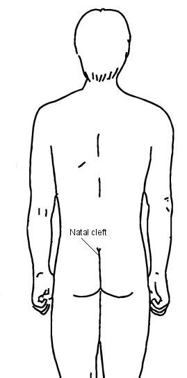 pilonidal cyst diagram pilonidal sinus diagram pixshark com images