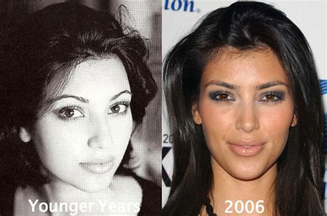 Kim Kardashian Plastic Surgery Before After Pictures 2015 | kim kardashian before plastic surgery butt and breast implants