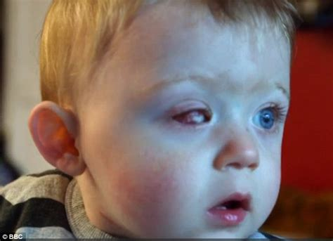 Eye Of Blind toddler left blind in one eye after drone propeller sliced