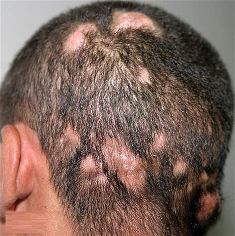hair loss and itching itchy scalp hair loss causes treatment remedy diseases pictures