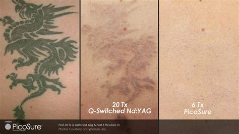 picosecond laser tattoo removal q switch versus picosure for removal toronto ontario