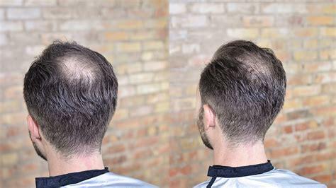 Mens Receding Hairline Hair Cuts Stylist225 Com Of Baton