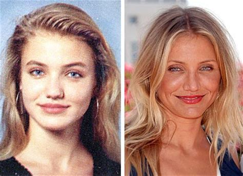 cameron diaz plastic surgery before amp after celebrity plastic surgery news