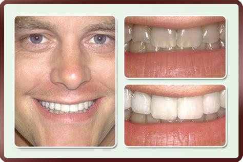 veneers prestonwood dental