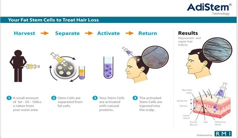 guide to hair loss conditions diagnose yourself facial and scalp hair loss porn galleries guide to hair