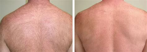 laser hair removal for light hair laser hair removal san diego the laser cafe