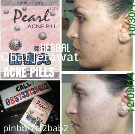 Po Wo Tong Pearl Acne Pill Obat Jerawat Hilang Seketika obat jerawat herbal acne pearl obat herbal mengatasi