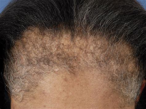 frontal fibrosing alopecia treatment alopecia calvicie alopecia androgen 233 tica calvicie