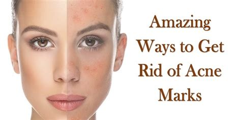 8 Ways To Get Rid Of Salesmen by 8 Amazing Ways To Get Rid Of Acne Marks