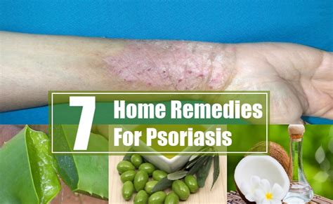 7 home remedies for psoriasis treatments cure
