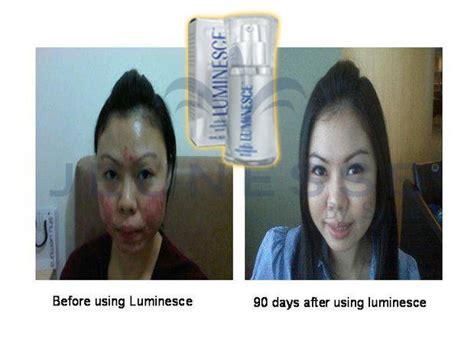 Serum Wajah Luminesce serum luminesce go sherly bbm 75c9f508 jeunesse global
