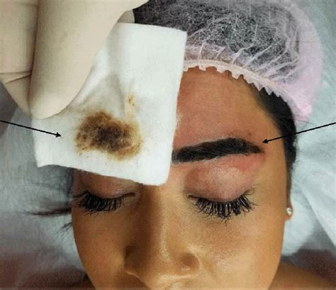 tattoo removal qualifications australia permanent makeup academy