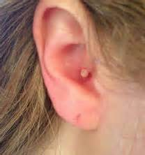 pimple in ear canal ear symptoms