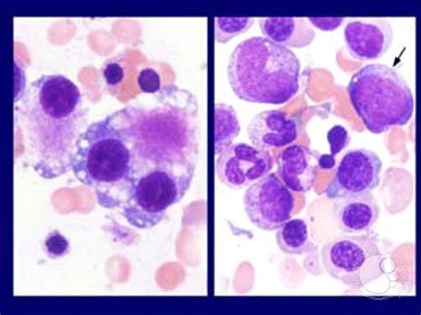 Myelodysplastic Pathology Outlines by Pathology Outlines Refractory Cytopenia With Multilineage Dysplasia Rcmd