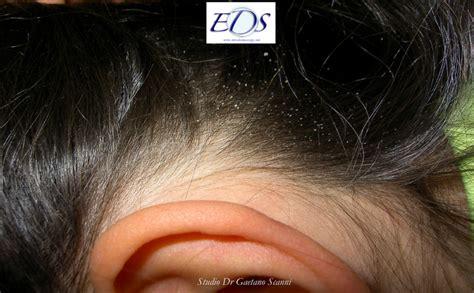 quanto vivono i pidocchi fuori dalla testa pidocchi dei capelli dr gaetano scanni