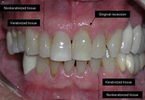 gums pulling away from teeth home remedy these 4 remedies will repair receding gums david