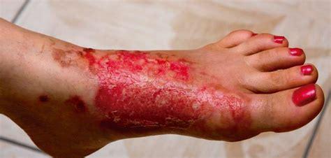 imagenes de uñas quemadas quemaduras causas tipos y recomendaciones meditip