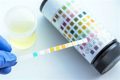 Urine And Stool Analysis screens testing services mayfair practice