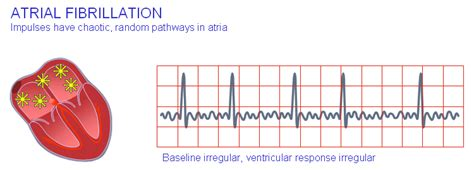 atrial fibrillation diagram explained