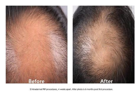 can platelet rich plasma stop hair loss and grow new hair platelet rich plasma prp hair restoration results