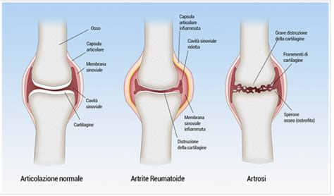 alimentazione per artrite reumatoide individuati nuovi obiettivi per il trattamento dell