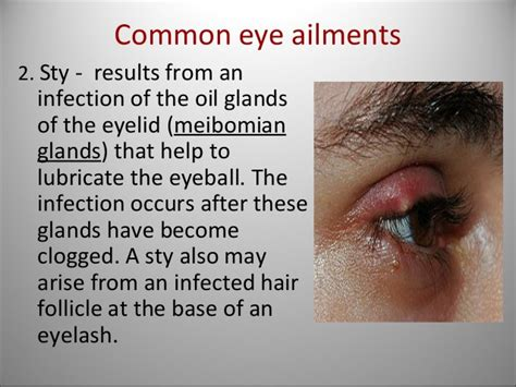 Resume Normal Activities After Cataract Surgery Sense Of Sight Structure Of The Eye Pptx