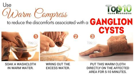 home remedies for ganglion cysts top 10 home remedies