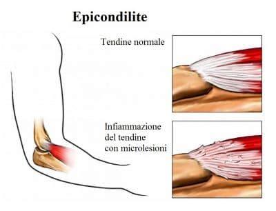 dolore al gomito parte interna epicondilite o gomito tennista sintomi della