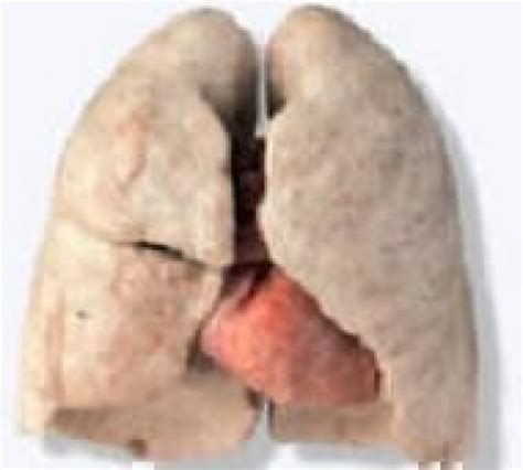 Best Lung Detox Programs by The Worlds Best Lung Detox Program Offer 35