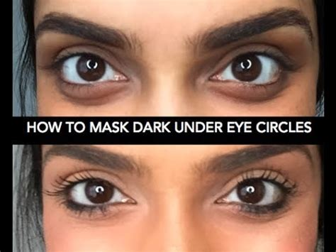 Permalink to How To Cover Dark Under Eye Circles With Makeup