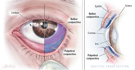 best neurology journals review of conjunctivitis diagnosis and treatment allergy