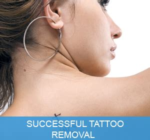 tattoo removal alternatives brisbane removal laser removal brisbane