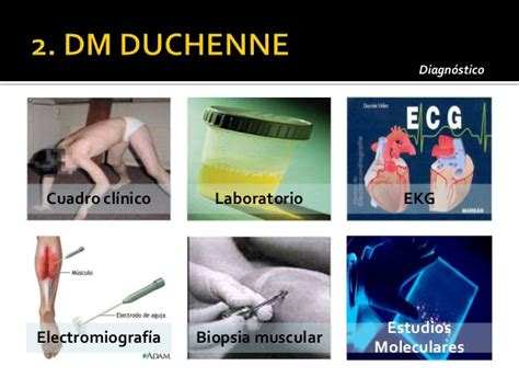 omim entry 310200 muscular dystrophy duchenne type dmd omim entry 310200 muscular dystrophy duchenne type dmd