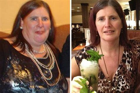 weight loss surgery my gastric band nearly killed me woman loses six and a half stone after being hypnotised