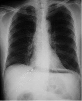Cupola Sign Radiology by Pneumoperitoneum Cupola Sign Toronto Notes