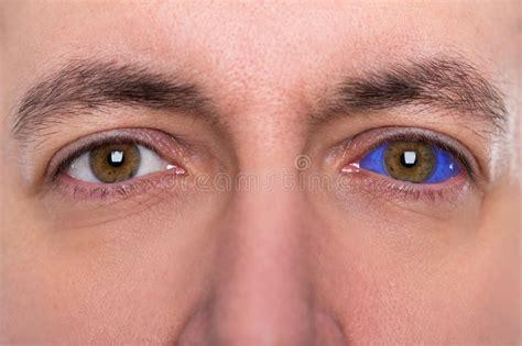 tattoo eyeball price close up man with a blue eyeball tattoo stock photo