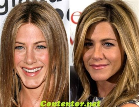 Did Aniston Get Implants by 17 Best Ideas About Aniston Plastic Surgery On