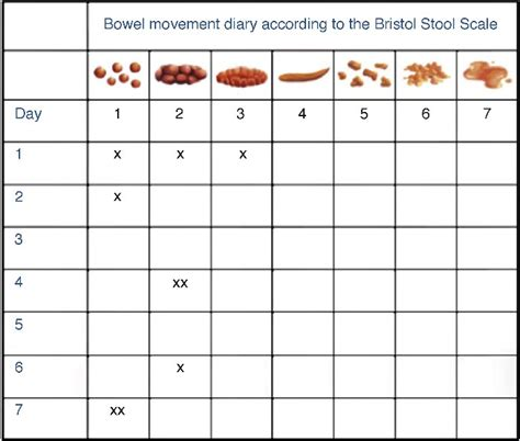 Stool Frequency by Stool Color Charts 2017 2018 Best Cars Reviews