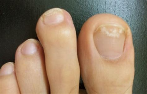 white spots on nail beds white toenails symptoms causes pictures and treatment