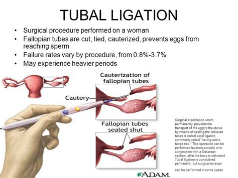 tubal ligation failure after c section contraception ppt video online download
