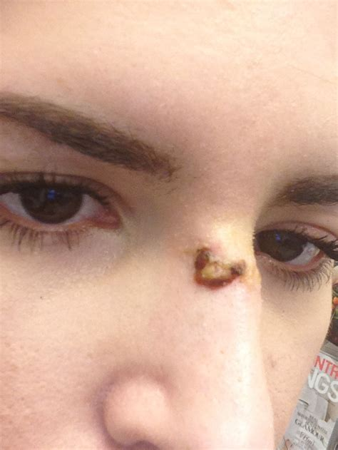 scab on s nose hello gorgeous i feel like a person again warning graphic photos the