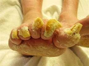 the worst case of toenail fungus i have seen yet all