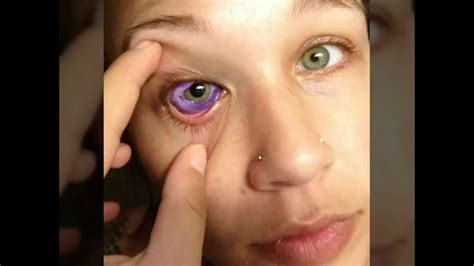 eyeball tattoo gone wrong eye wrong