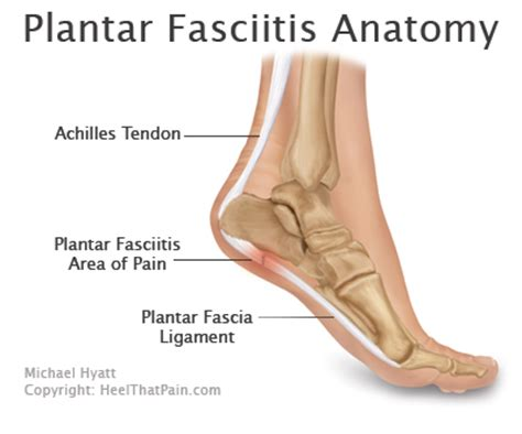 Planters Fasciitis Symptoms by What Is Plantar Fasciitis And Ideas On How To End It