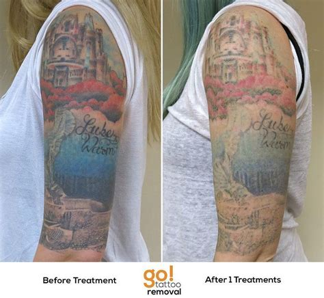 when to remove tattoo bandage 679 best images about removal in progress on