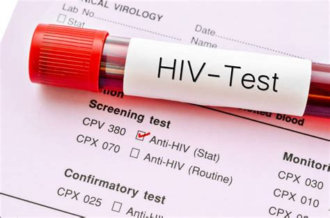 Is A Test Part Of A Background Check Japan To Offer Free Hiv Testing In Annual Company Health Checks To Encourage Early
