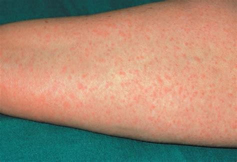 a substance that causes sensitivity to penicillin allergy identification and management