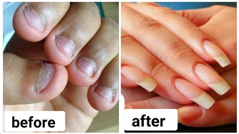 Do You Bite Your Nails by Growing Your Nails After Years Biting Best Nail Designs 2018